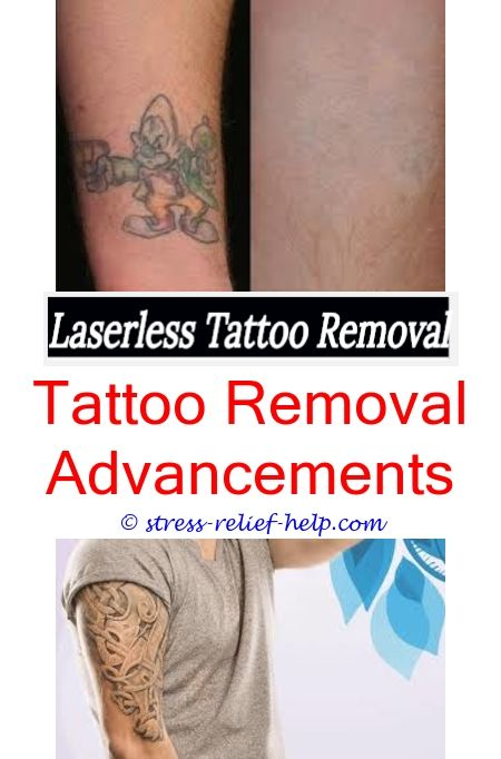 Tattoo Removal Doctor Homemade Tattoo Removal Cream Tattoo Removal Baton Rouge Tattoo Lightening Did Khloe Get Tattoo Removed What Is The Cost Of