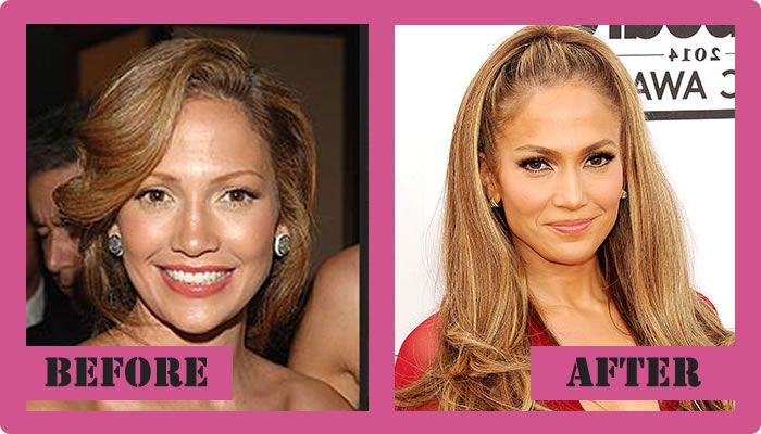 Image result for jennifer lopez cosmetic surgery before and after