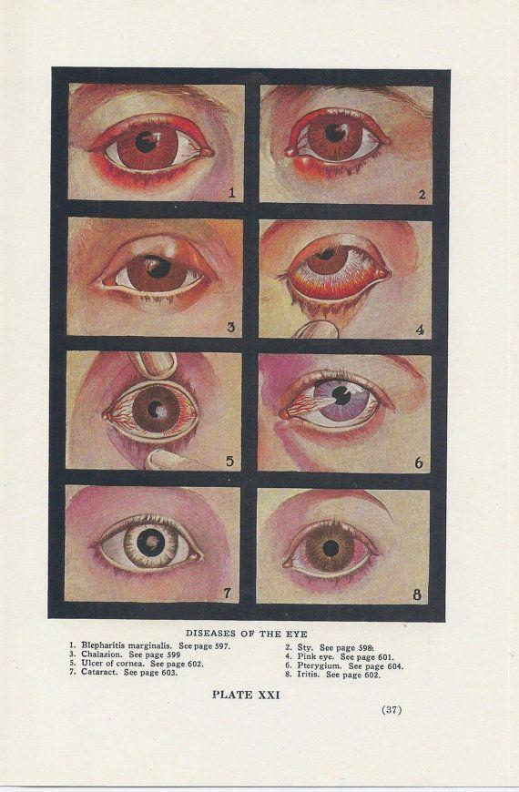 maladies de l 39 oeil maladie ophtalmologie illustration m dicale vintage ann es 1940 double. Black Bedroom Furniture Sets. Home Design Ideas