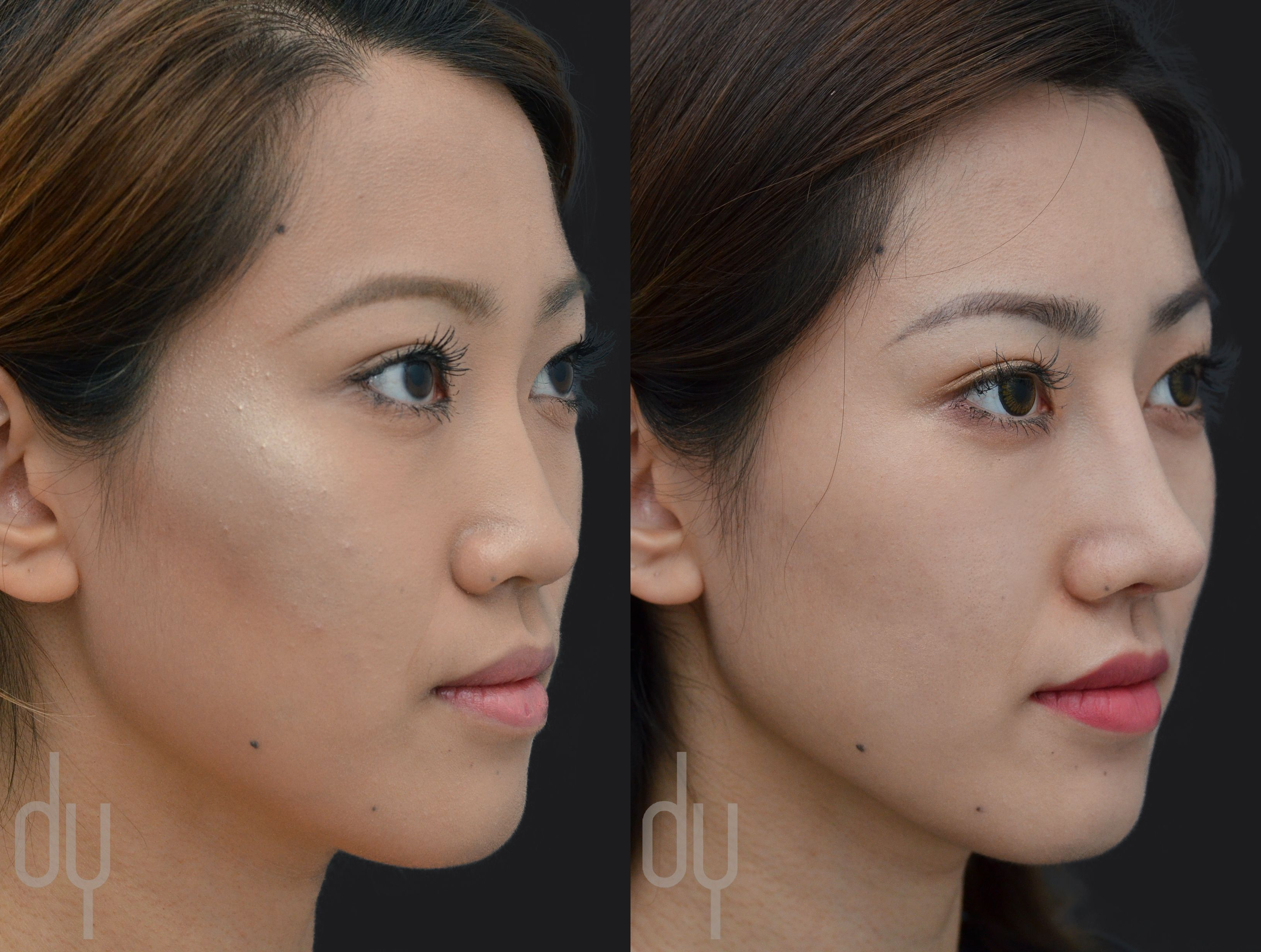 Before and after surgical asian rhinoplasty with rib