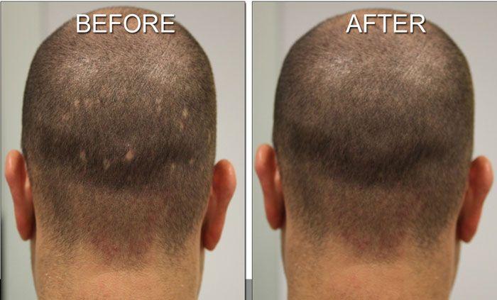 Desogestrel Side Effects Hair Loss