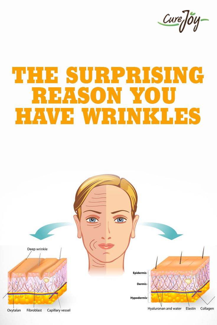 The Surprising Reason You Have Wrinkles ==>