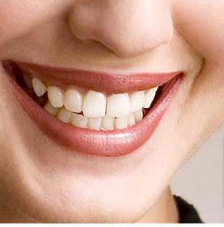 A dental crown is actually a dental restoration which cups above that portion of the tooth which is situated over the gumline. The crowns are often accustomed to secure tooth along with strengthen them.