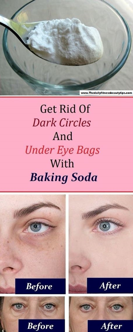 How To Get Rid Of Dark Circles & Under Eye Bags With Baking Soda? -   25 how to get rid of bags under eyes ideas