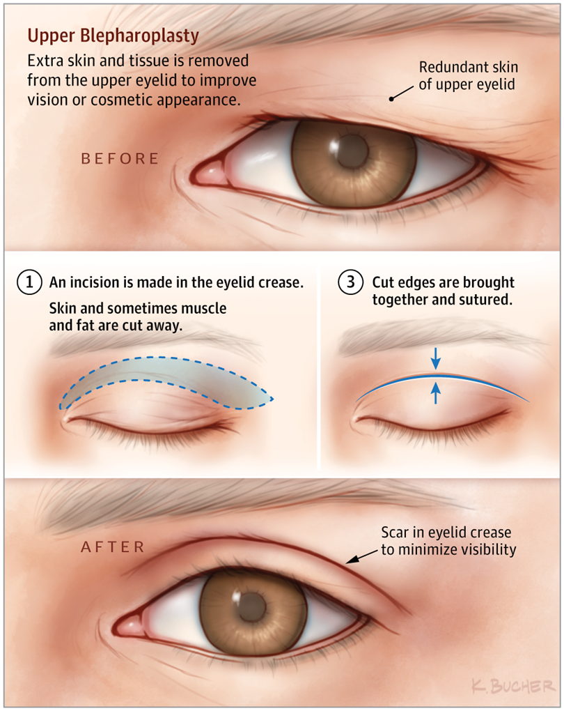 cf720488bff7cd6ed45911c0a3b4508f - How To Get Rid Of Double Eyelids Without Surgery