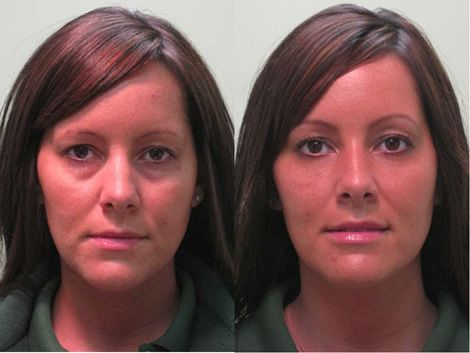 Before and after non-surgical blepharoplasty with Restylane | Nips