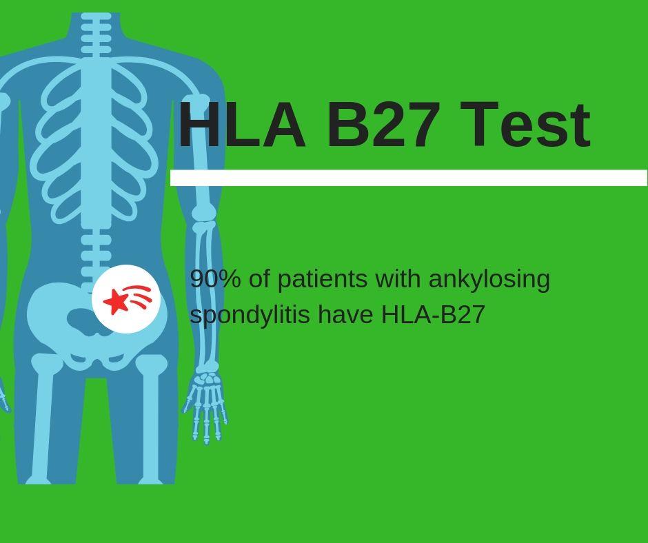 Hla B27 Positiv Ernährung
