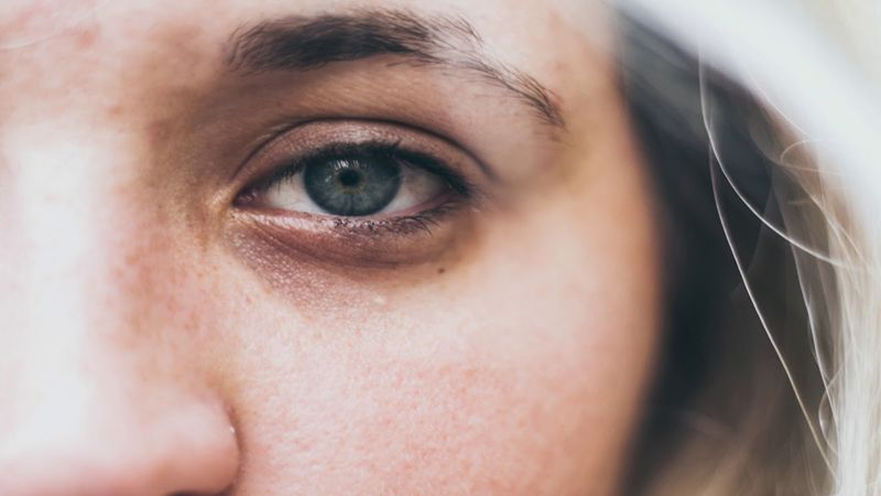 How to Fix Tired-Looking Eyes | Women's Lifestyle in 2019