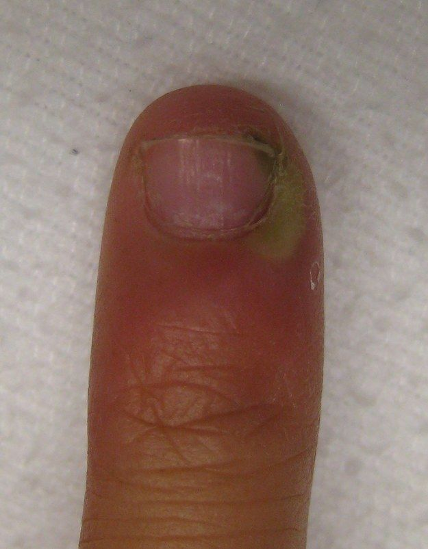 11 Slightly Horrifying Facts That Will Stop You Biting Your Nails ...