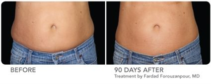 CoolSculpting Non-Surgical Fat Reduction Treatments Baltimore, Maryland