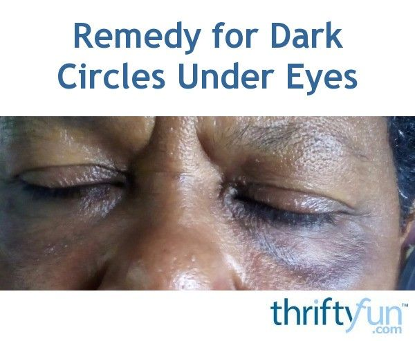 Remedy for Dark Circles Under Eyes? | Dark circles under ...