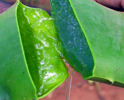 Aloe Vera - The best natural home remedy for people with shingles or