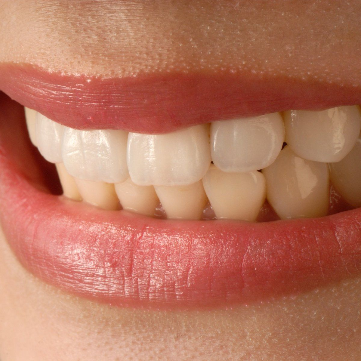 A veneer is a layer of material placed over a tooth which improves and protects the tooth's surface from damage. Two main types of veneer: composite and dental porcelain.  #dentistottawa #dentistorleans #dentist #dentistebilingue #dentalclinic #familyservice #veneers #dentalfacts