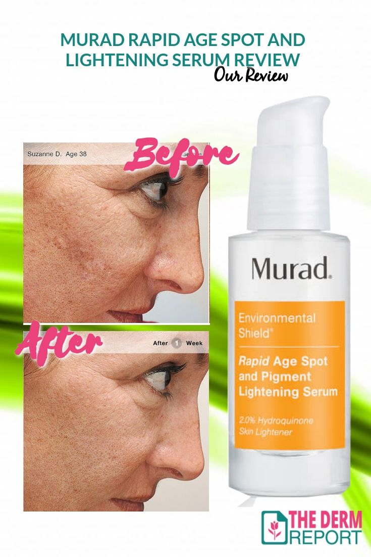 Murad Rapid Age Spot And Pigment Lightening Serum Review In 2018 Skin Care Pinterest Lighten