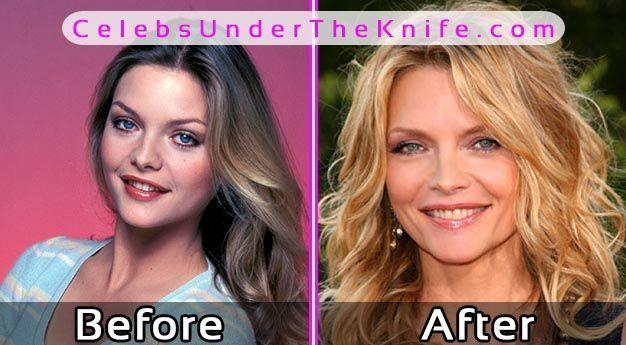 Michelle Pfeiffer Plastic Surgery Before After #celebsundertheknife #celebs #cel