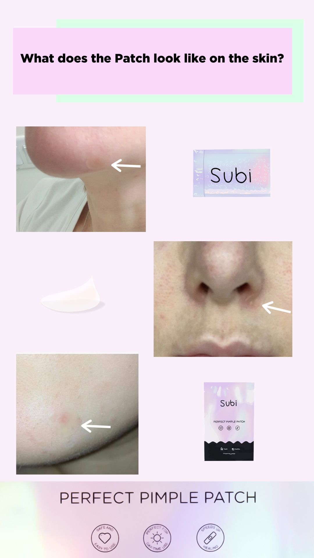 Subi Perfect Pimple Patch Shop It At Style Story How To Clear