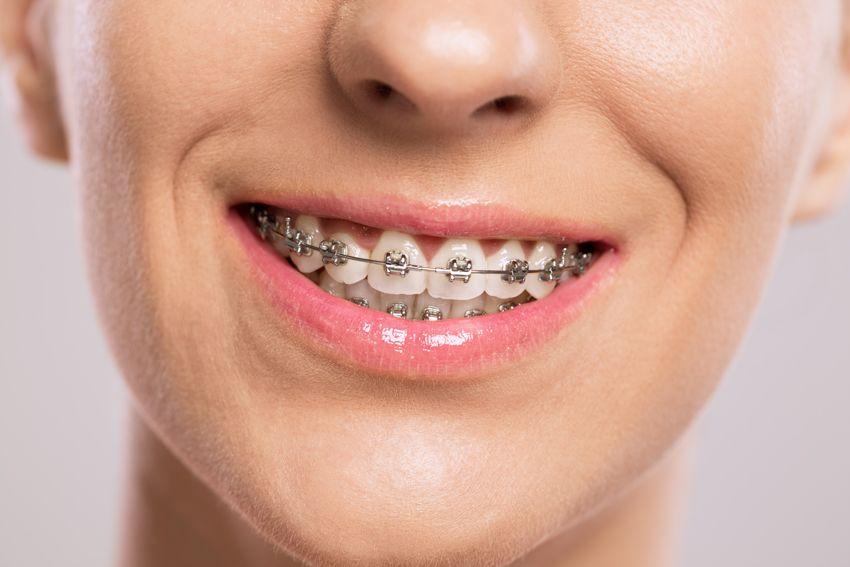 Ci Sono Vari Tipi Di Apparecchi Ortodontici Cioe Apparecchi Per Allineare I Denti E Ognuno E Adatto Apparecchio Per I Denti Dentista Apparecchio Ortodontico