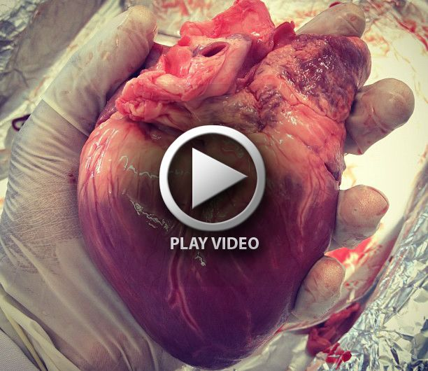 heart dissection cardiac anatomy – Medical Videos | The art of ...