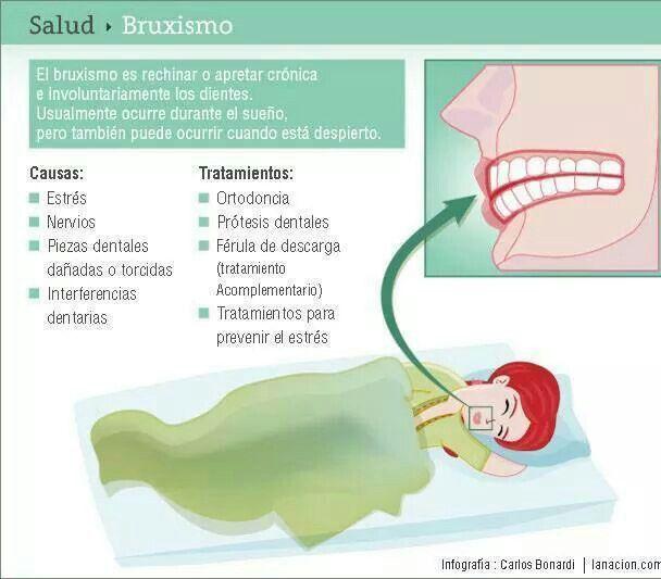 Bruxismo Ortodoncia Dental Protesis Dentales
