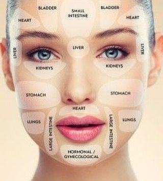 What Is Your Acne Telling You This Helpful Diagram Gives You A Better Understan Skin Health Beauty Face Mapping