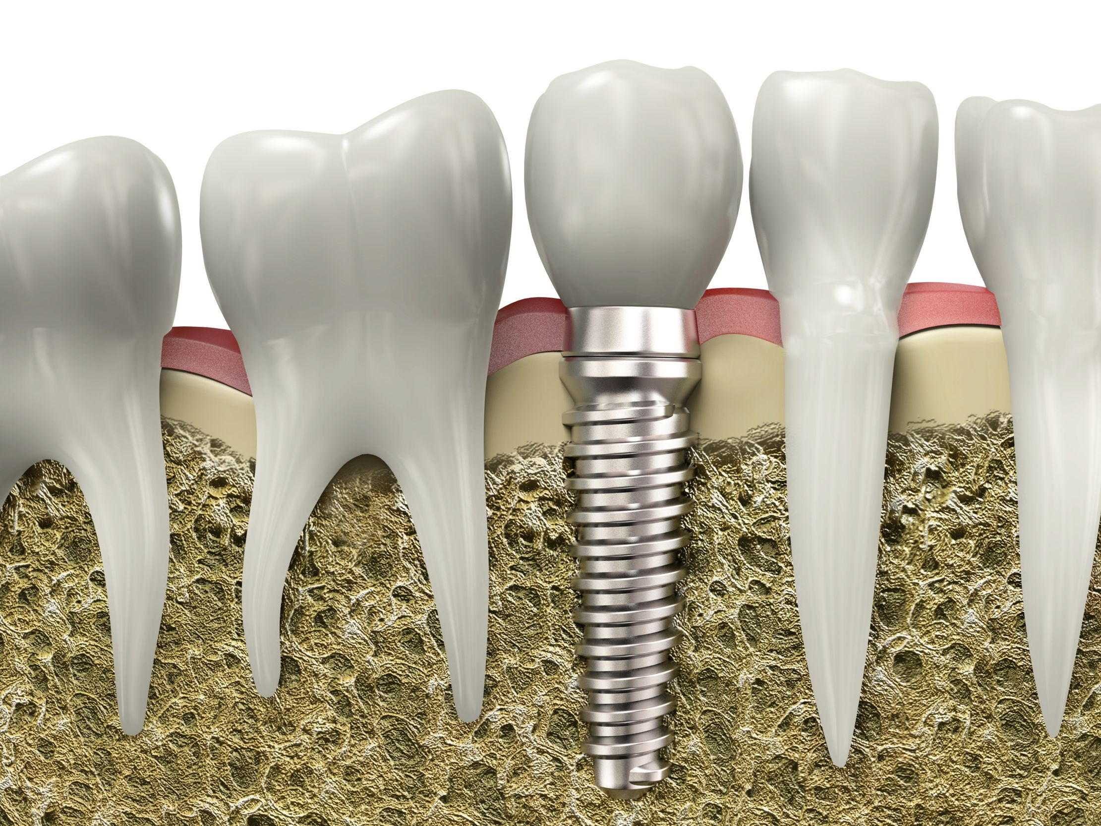Dental implants are so natural-looking and feeling, you may forget you ever lost a tooth..