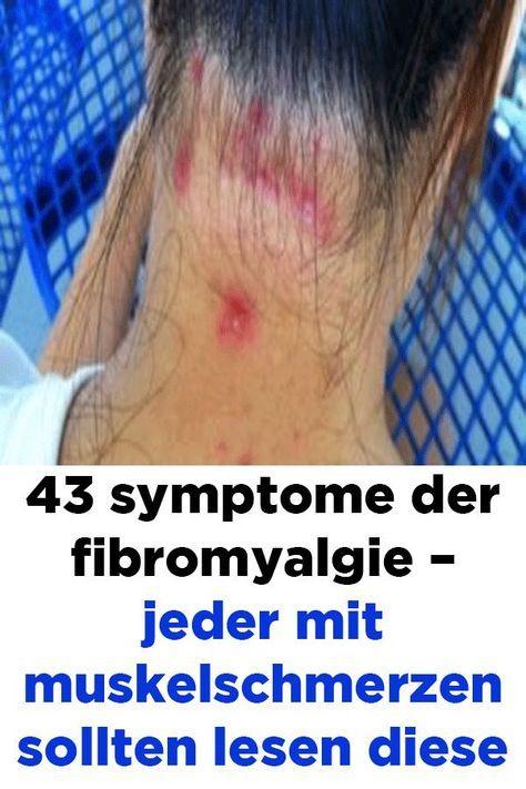 43 Symptome der Fibromyalgie - Jeder mit Muskelschmerzen..