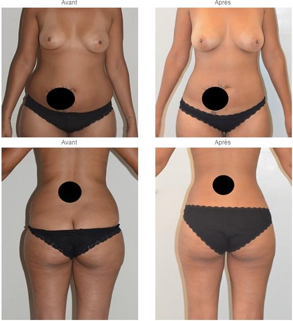 liposuccion poitrine femme