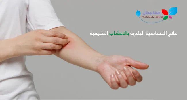علاج الحساسية الجلدية بالاعشاب الطبيعية تعرف الى أهم الأعشاب المعالجة للحساسية Sehajmal Beauty Asa Holding Hands