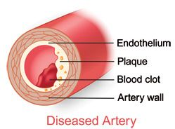 This is a diagram showing the inside of the artery and what could this is a diagram showing the inside of the artery and what could lead to diabetes ccuart Choice Image
