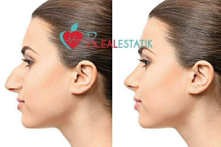 تجميل الانف بالفيلر Ear Cuff Ear Earrings