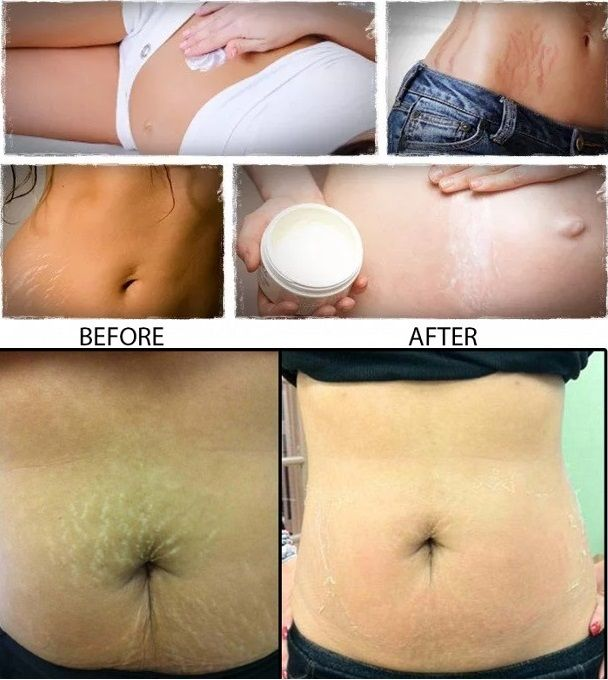 Nix Those Stretch Marks On Your Ta Tas The Natural Way Stretches And
