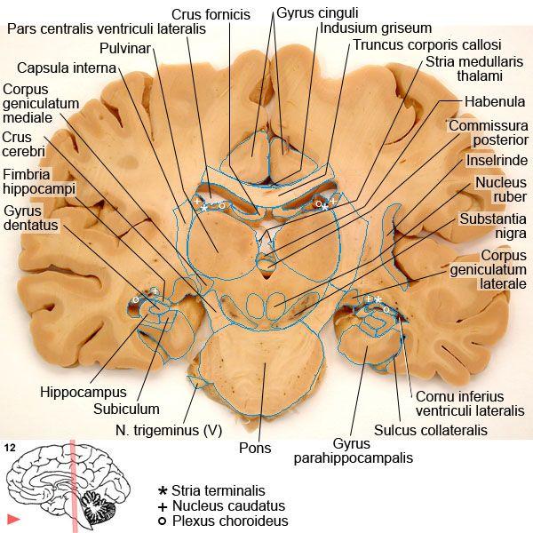 corpus geniculatum - Google zoeken | geneeskunde | Pinterest ...