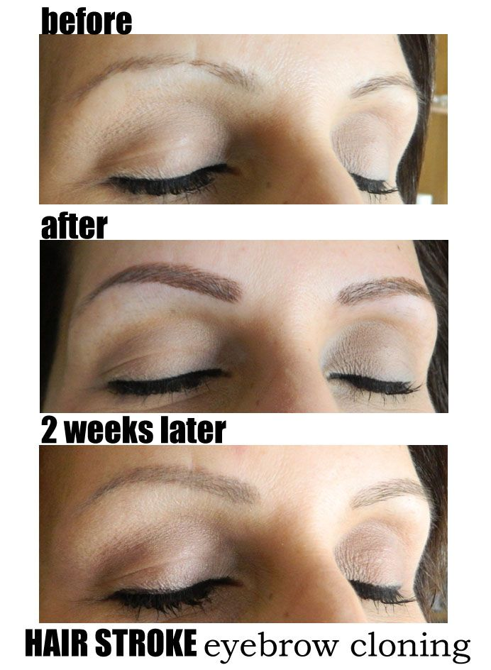 Semi Permanent Eyebrows | Eyebrow Microblading / Feathering ...