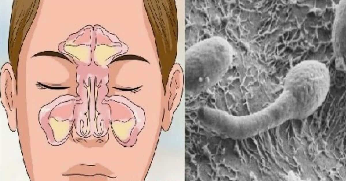¿Puedes tener lombrices intestinales en la nariz?