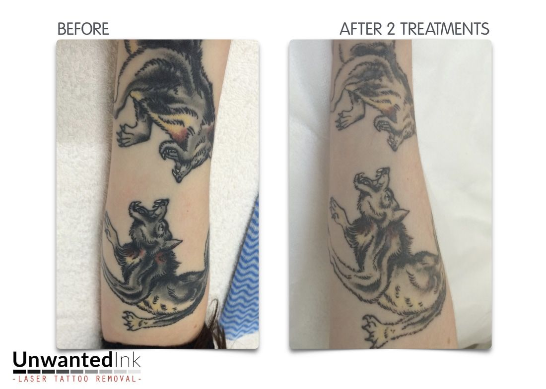 Sydney Laser Tattoo Removal Specialists Focusing On Fade Outs Modification Our Q Switched Ndyag Laser Makes Removing Black Ink A Breeze