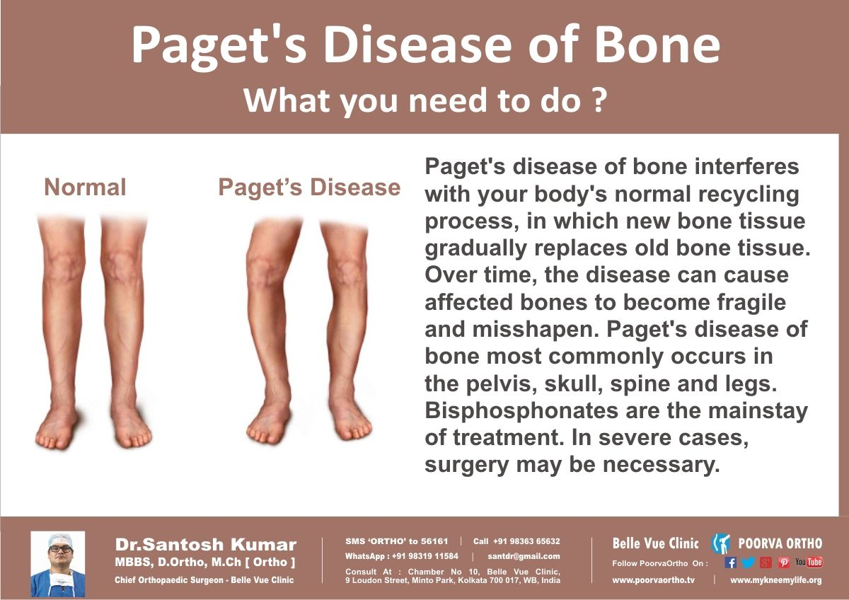 What you need to do if you have Paget's Disease of Bone