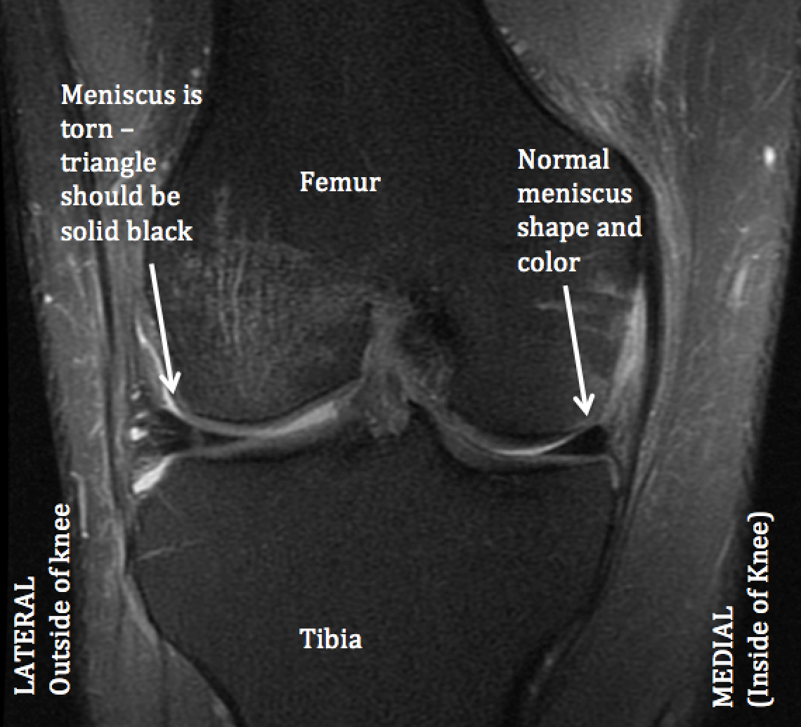 Mri Anatomy Knee Image collections - human anatomy diagram organs