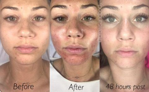 Microneedling Before And After Mesa Arizona Microneedling Skin Care Clinic Face Peel
