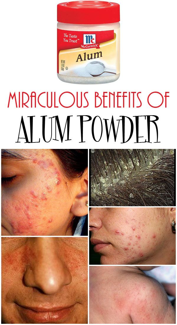 Get Rid Of Dandruff Acne Or Irritations With Alum Powder Alum