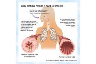 Diät bei Asthma bronchiale