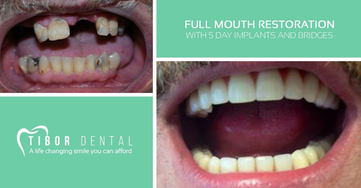 This man had periodontal gum disease and bone recession