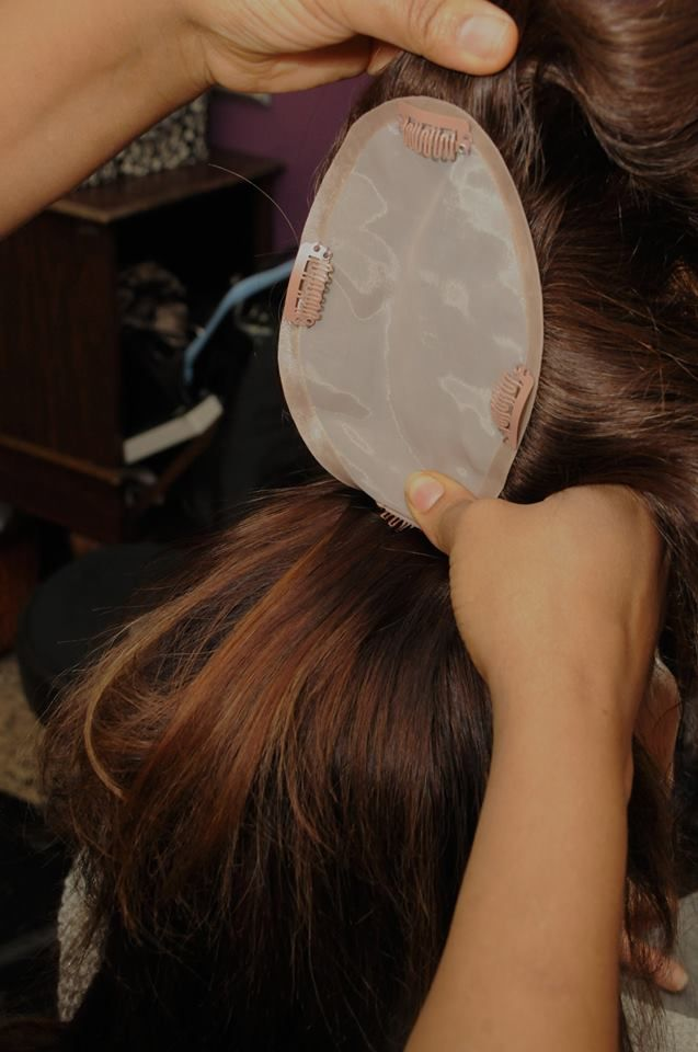 Hairloss Extensions Hair Loss Hair Pinterest Hair Loss