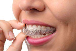 Newtown Dentist #bestteethwhitening