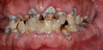 evolucion-caries-dental-guadalajara | caries | Pinterest