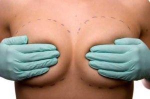#Rapid Recovery Breast Augmentation