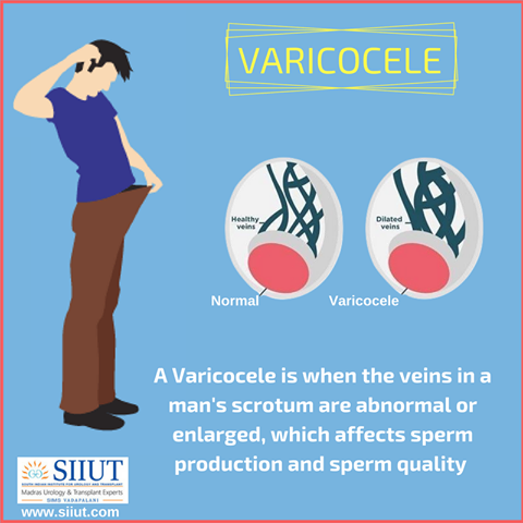 Sperm count after varicoceles surgery