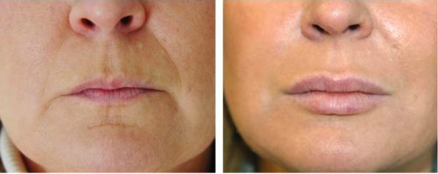 Non Surgical Procedures At The Aesthetic Institute The Northbrook Clinic Dermal Fillers Facial Procedure Botox Fillers