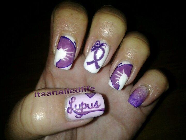 Supporting Lupus Awareness   awareness nails!   Pinterest   Lupus ...