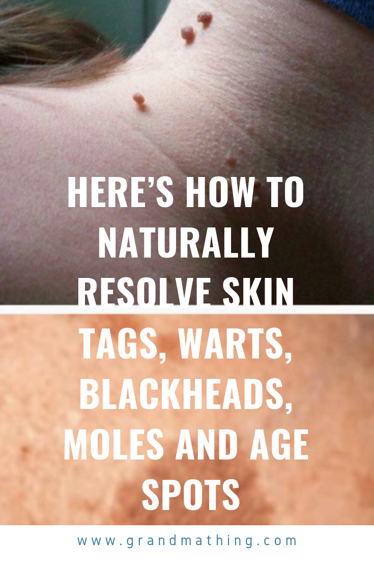 8 Natural Remedies To Remove Blackheads | Health | Skin tag