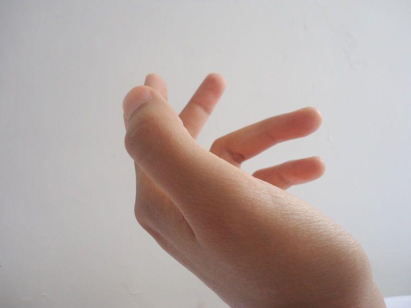 かゆい 手の甲 が